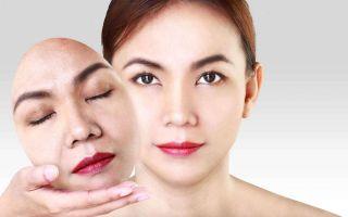 Кислотные пилинги: боремся с проблемами кожи грамотно
