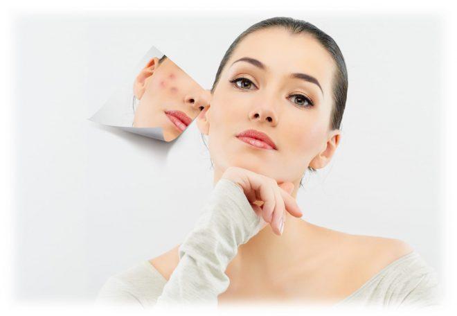 очищение кожи азелаиновой кислотой