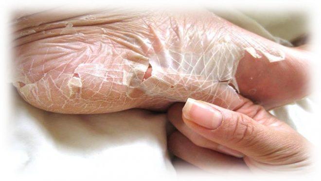 отслоение кожи после применения процедуры