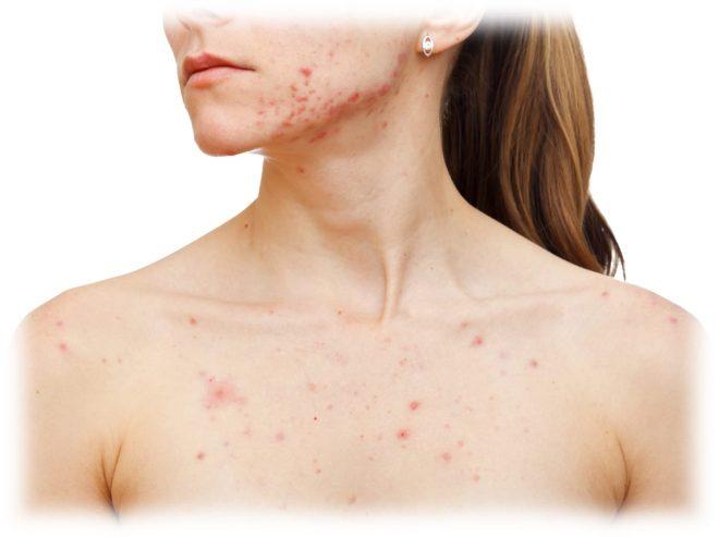 прогрессирующие дефекты проблемной кожи у девушки