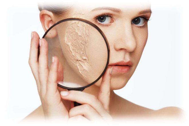 отмершая кожа при увеличении