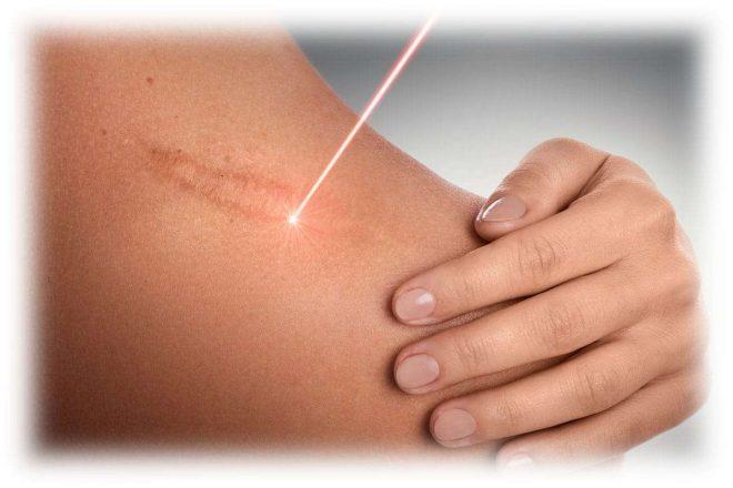 воздействие лазера на кожу