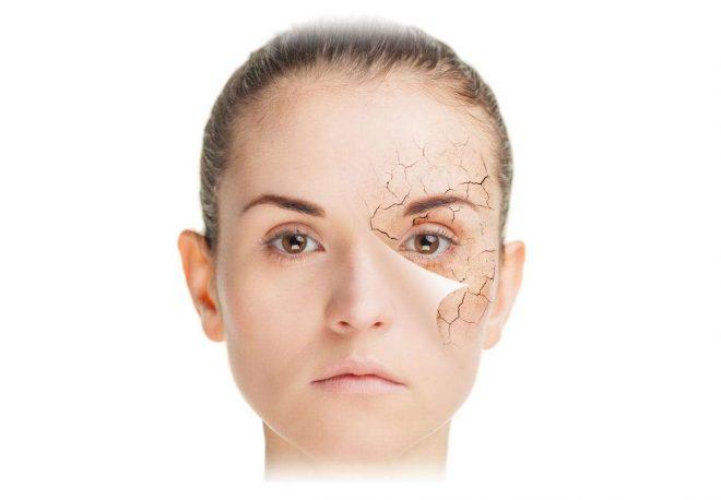 проблема с кожей, лицо девушки