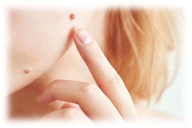 родинки на лице девушки, палец