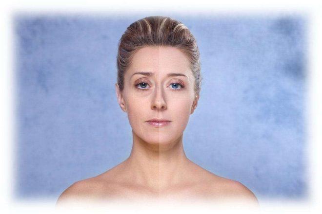 женское лицо с проблемами кожи и без