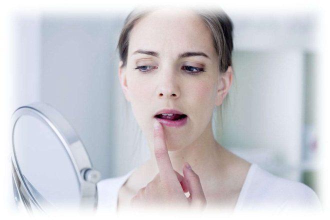 девушка смотрится в зеркало, герпес на губе